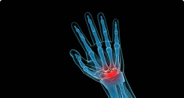 An image of a person's wrist where red indicates the pain area
