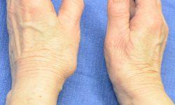 Notice how the left thumb is still deformed?
