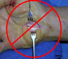 A surgical image of a wrist split open and hoisted with surgical forks
