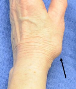 base of the thumb enlarged