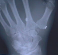 X-Ray After Tight Rope Suspension Surgery