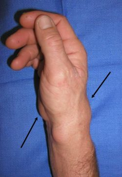 A wrist where large bumps are being shown with arrows
