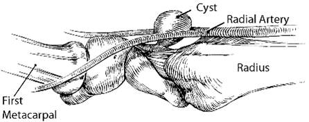 A diagram of where a cyst can take place in the wrist