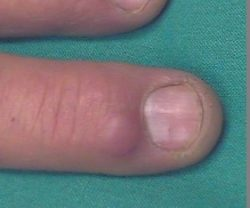 A Mucous Cyst jetting out of the top of a patient finger