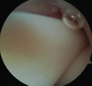 An image of a Normal Biceps Tendon