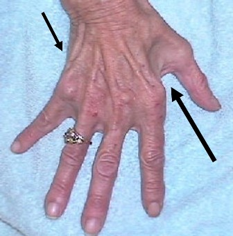 Areas of the hand with arrows to indicate Severe Wasting
