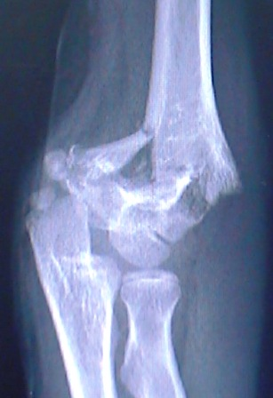 A MRI of a Supracondylar Humerus