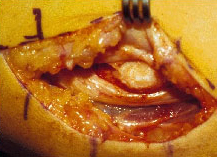 An arm cubital that is sliced open as forks hold the exterior flesh agape and open for surgery