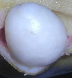A gigantic white blob cyst removed from a patient