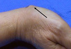 An image of a hand where the arrow is pointing to the ganglion at the base of the thumb