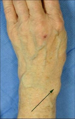 An image of a forearm where an arrow is pointing to a large bulging area