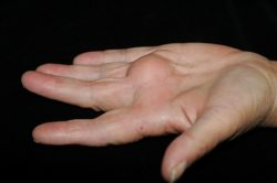 An open palm of a patient where a gigantic ball is in the middle of the hand