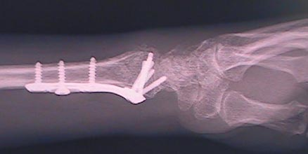 x-ray post op of a wrist fracture