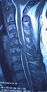 Cervical spine imaging