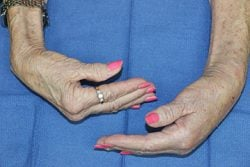 arthritis in a woman's wrist