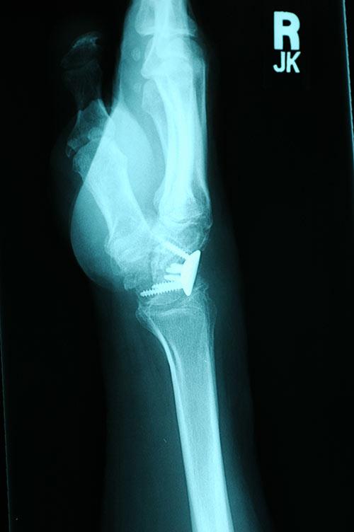lat x-ray limited fusion wrist