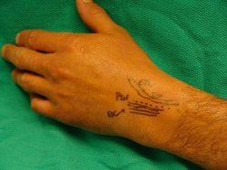 Percutaneus denervation shown on hand