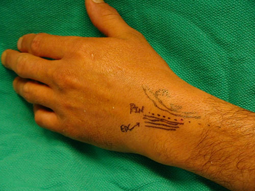 Percutaneus denervation shown on hand