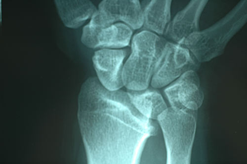ulnocarpal that causes ulnar wrist pain
